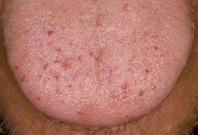 small red spots on tongue surface