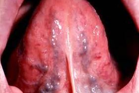 Dark spots under tongue