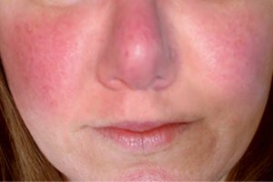 What causes red cheeks