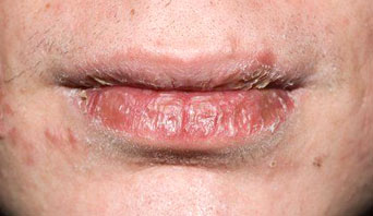 Dry lips with cracks
