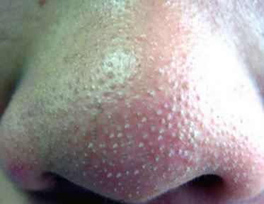 Whiteheads on nose - small, hard, large on nostril