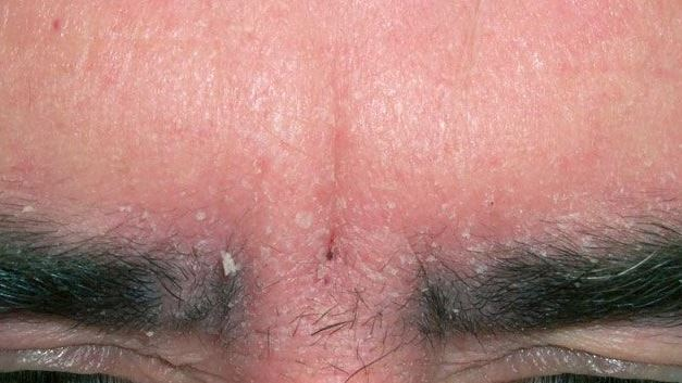 Itchy eyebrows due to eyebrow dandruff