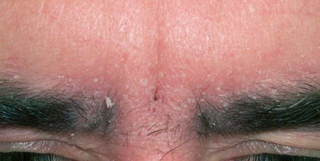 Eyebrow dandruff - White flakes under eyebrows and between eyebrows