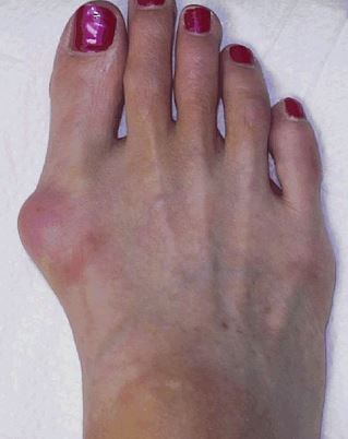 Foot bunion can lead to inner side of foot pain