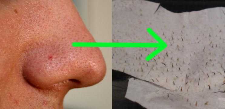 Getting rid of oily nose and blackheads
