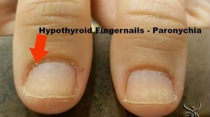Hypothyroidism nail symptoms