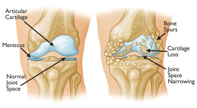 Knee arthritis can cause pain inside knee