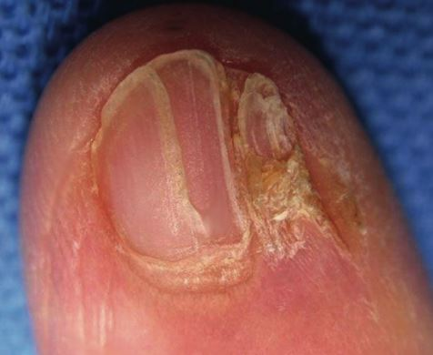 Lichen Planus can also cause cracked nails
