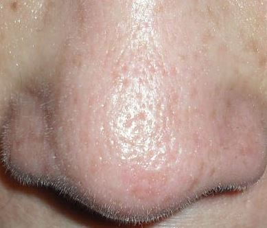 Oily nose and large pores