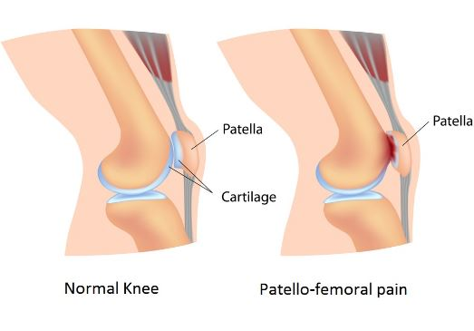 Patelofemoral pain syndrome