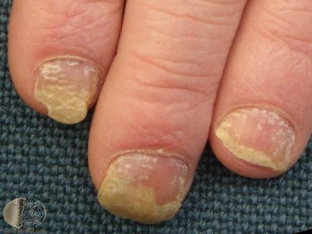 Signs of nail psorisis