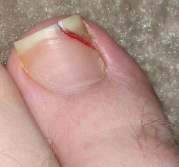 Split toenail due to trauma-causing injury