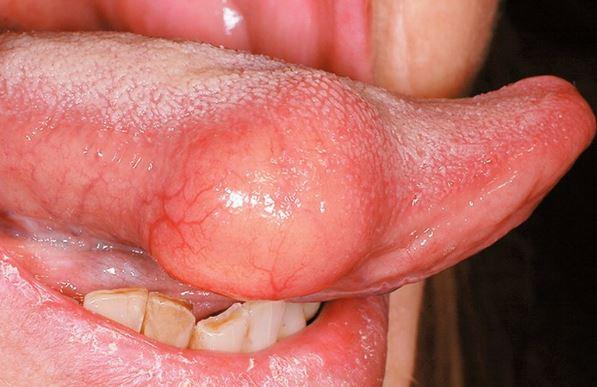 Swollen tongue on one side