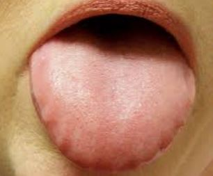 Swollen tongue with teeth marks