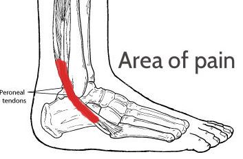 Tendonitis foot ankle tendonitis side of foot pain