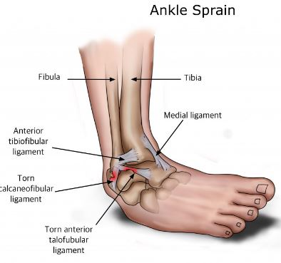 ankle sprain is another possible reason for pain on the sid eof foot