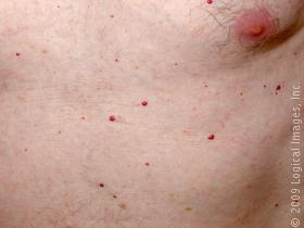 cherry hemangioma in adults