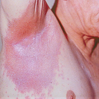 inverse psoriasis under armpits and round under arms