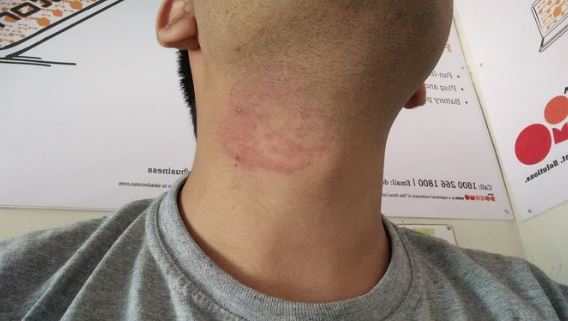 ringworm on neck can cause itchiness