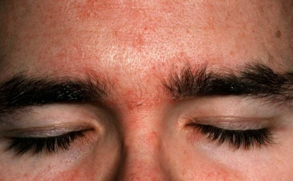 forehead redness between eyes