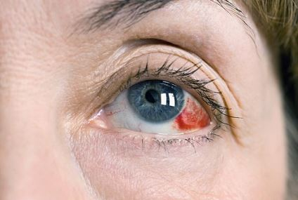 Broken blood vessel in eye causes, treatments and remedies