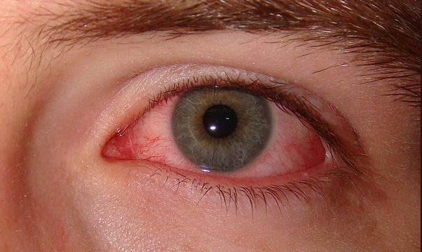 Dry eyes causes, treatments and remedies